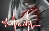 Előre jelezheti a szívinfarktust egy magyar kutatócsoport új rizikóbecslő eljárása