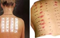 Fokozódó allergiás tüneteket hozhat a hőhullám