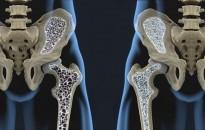 A csontritkulásos betegek töredéke kezelteti magát