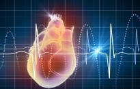 Pitvarfibrilláció Hete: Komoly baj lehet a szabálytalan szívverés hátterében