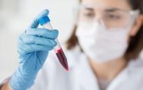 Hatékonyabbá tehetik a leukémia kezelését egy magyar kutatócsoport eredményei