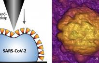 Koronavírus - Az elsők között sikerült magyar kutatóknak megvizsgálniuk az aktív vírus szerkezetét