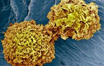 A rák leggyakoribb fajtáit szűrő vérvizsgálatot teszteltek