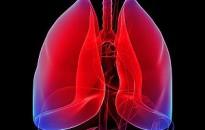 Magyarországon a legmagasabb a tüdőrák okozta halálesetek aránya az Európai Unióban
